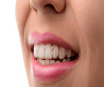 A female patient wearing Invisalign aligners