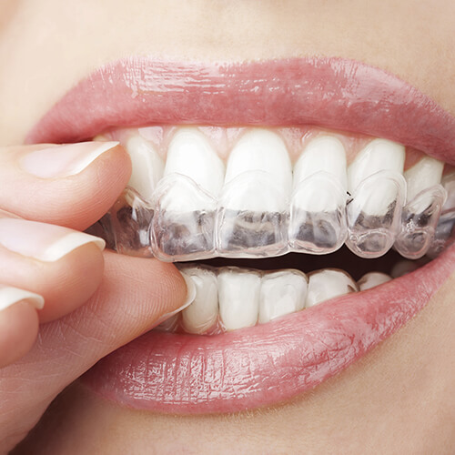 A patient placing their Invisalign aligners over their teeth