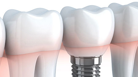 A illustration of a dental implant - a part of TLC Dentistry's restorative dentistry services