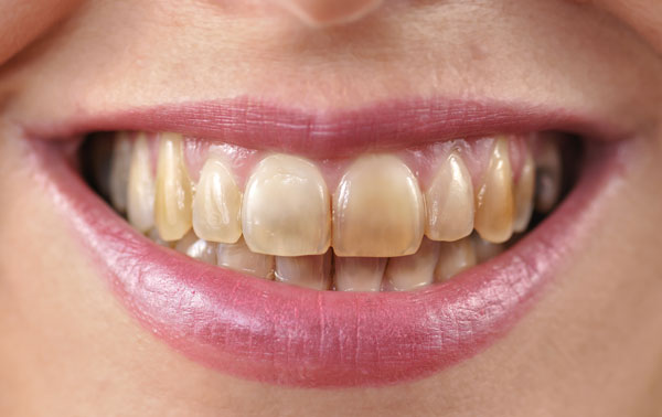 What Is Fluorosis Tlc Dentistry
