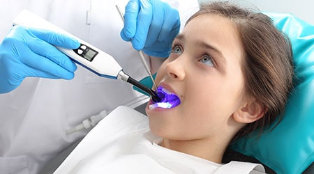 A child patient getting dental sealants in Salinas, CA